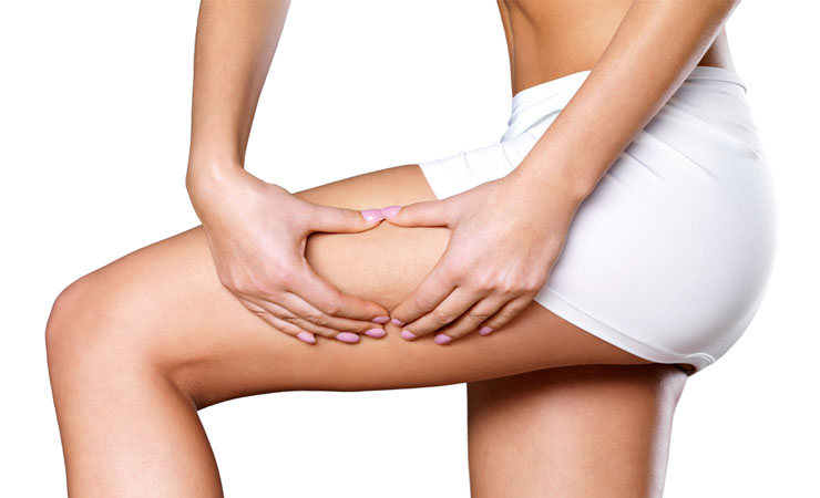 Banish the Cellulite