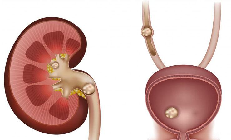 Prevent Kidney Stones