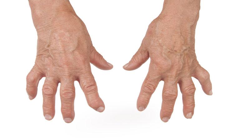 You can Fall ill to Rheumatoid Arthritis